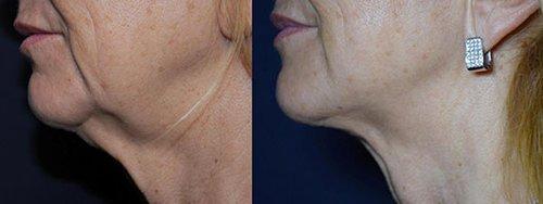 """פייס טייט: לפני ואחרי הטיפול   צילום: יח""""צ פרומדיקס"""