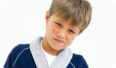 גם אם אדם שקיבל חיסון יחלה במחלה, היא תהיה קלה יותר מאשר אצל אדם שלא חוסן. אילוסטרציה: GettyimagesImagebank